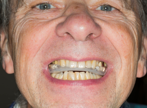 Close up of teeth guard in senior mouth