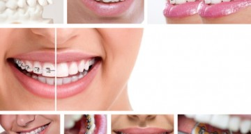 The Most Common Myths Concerning Braces