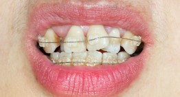 Issues Corrected by Braces