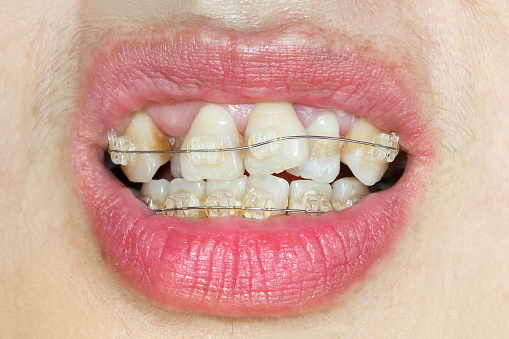 Close-up mouth of crooked teeth with braces