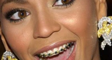 Ten Celebs Who Totally Rocked Their Braces!