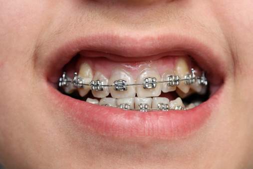 children teeth with braces