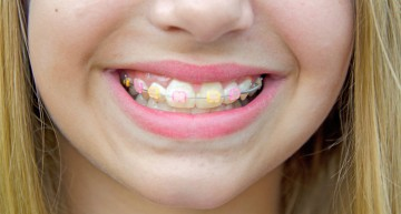 How Can You Shorten the Timeline of Your Orthodontic Treatment?